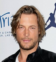 Gabriel Aubry battered and bruised after Thanksgiving bust-up